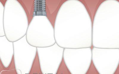 ¿Que son los implantes dentales?