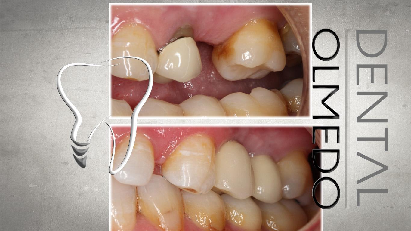 implantes 1