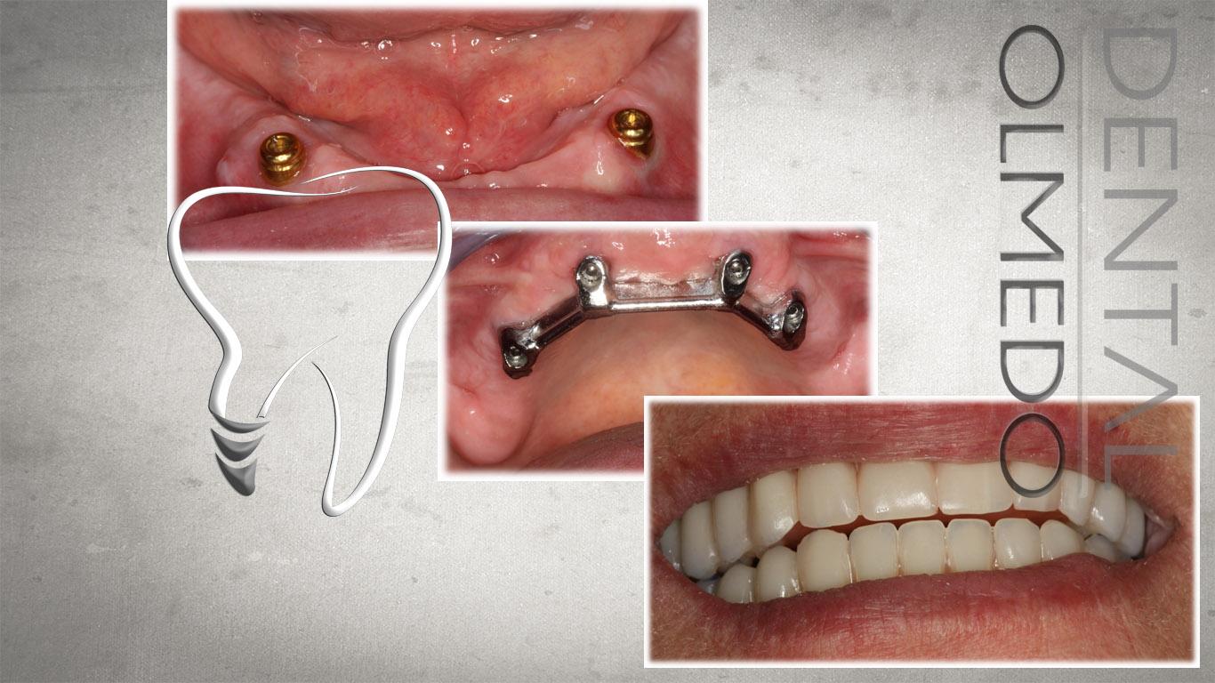 implantes 2