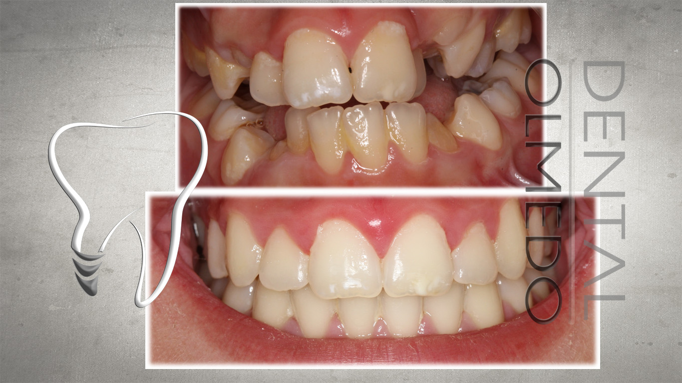 ortodoncia 3
